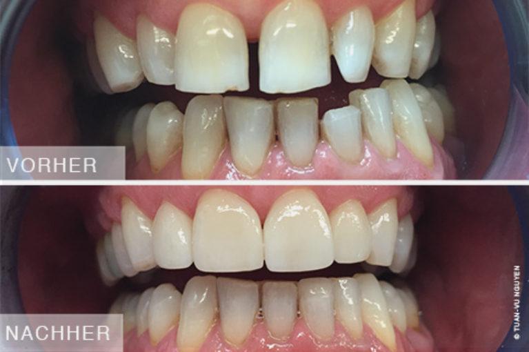 Zahnarzt-Nguyen-Zahnaesthetik